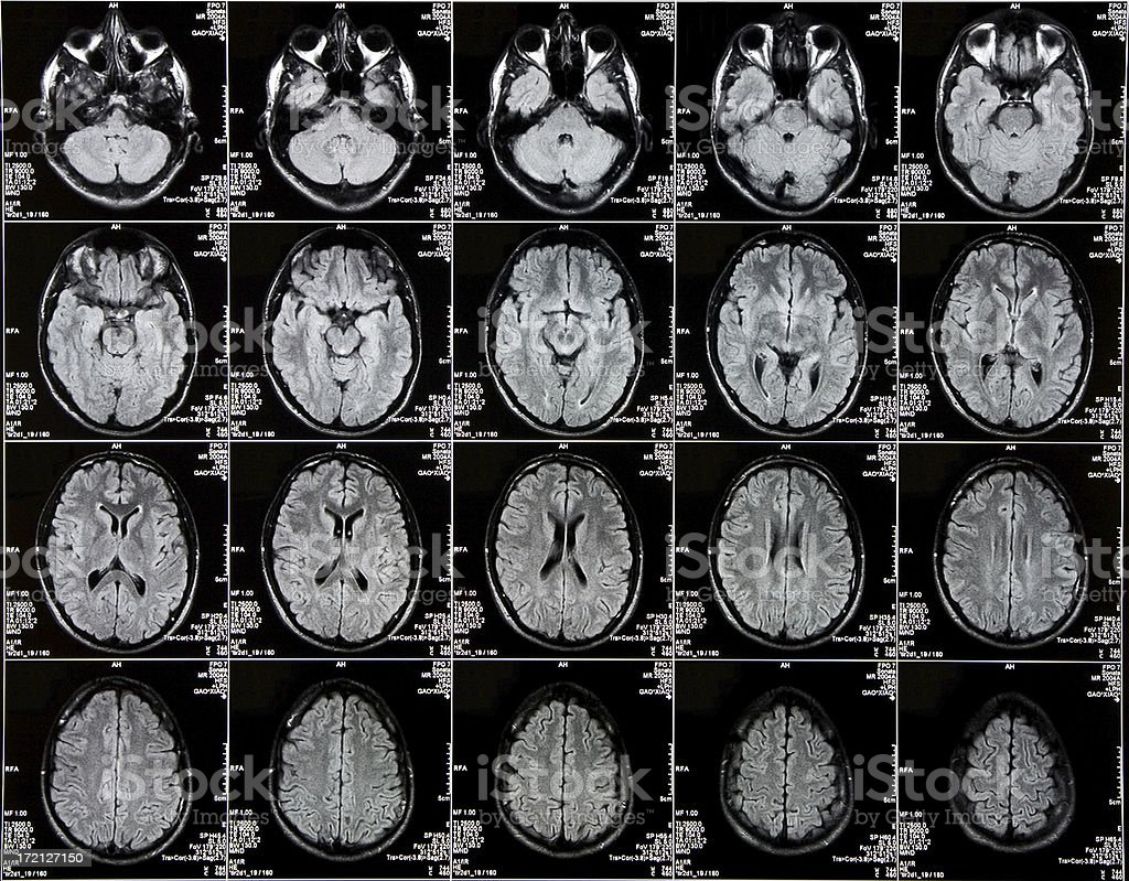 Brain CAT scan Top View stock photo
