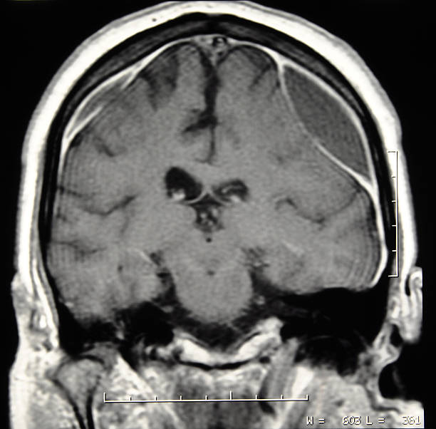 Brain CT scan with subdural hematoma stock photo