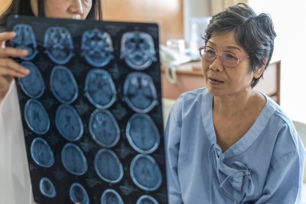 brain disease diagnosis with medical doctor diagnosing elderly ageing patient neurodegenerative illness problem seeing magnetic resonance imaging (mri) film for neurological medical treatment - alzheimer imagens e fotografias de stock