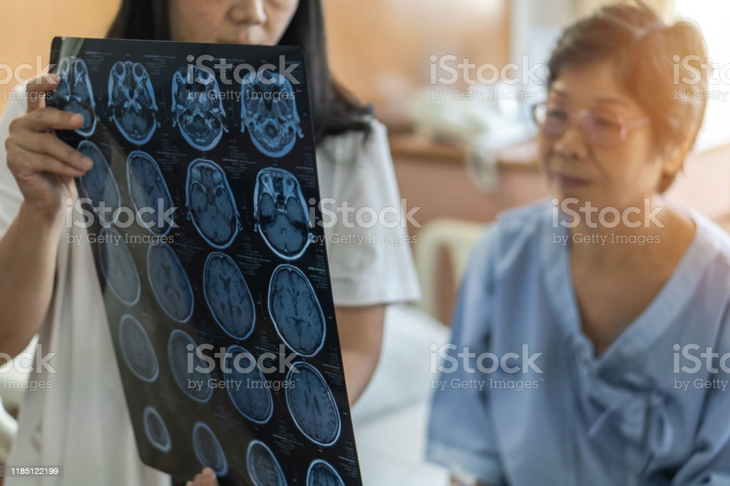 Brain disease diagnosis with medical doctor diagnosing elderly ageing patient neurodegenerative illness problem seeing Magnetic Resonance Imaging (MRI) film for neurological medical treatment Brain disease diagnosis with medical doctor diagnosing elderly ageing patient neurodegenerative illness problem seeing Magnetic Resonance Imaging (MRI) film for neurological medical treatment Adult Stock Photo