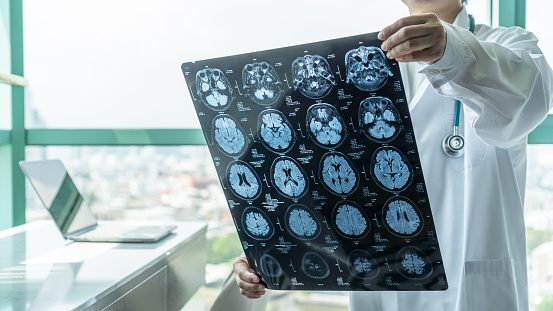 Brain disease diagnosis with medical doctor seeing Magnetic Resonance Imaging (MRI) film diagnosing elderly ageing patient neurodegenerative illness problem for neurological medical treatment