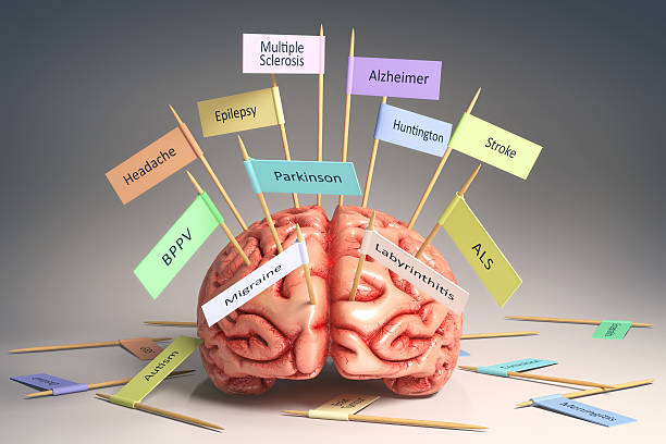 Brain Diseases Image of a brain on the table with various nameplates of various diseases that can affect our brain. It's a 3D image with nameplates stuck by toothpick. Clipping path included. amyotrophic lateral sclerosis stock pictures, royalty-free photos & images