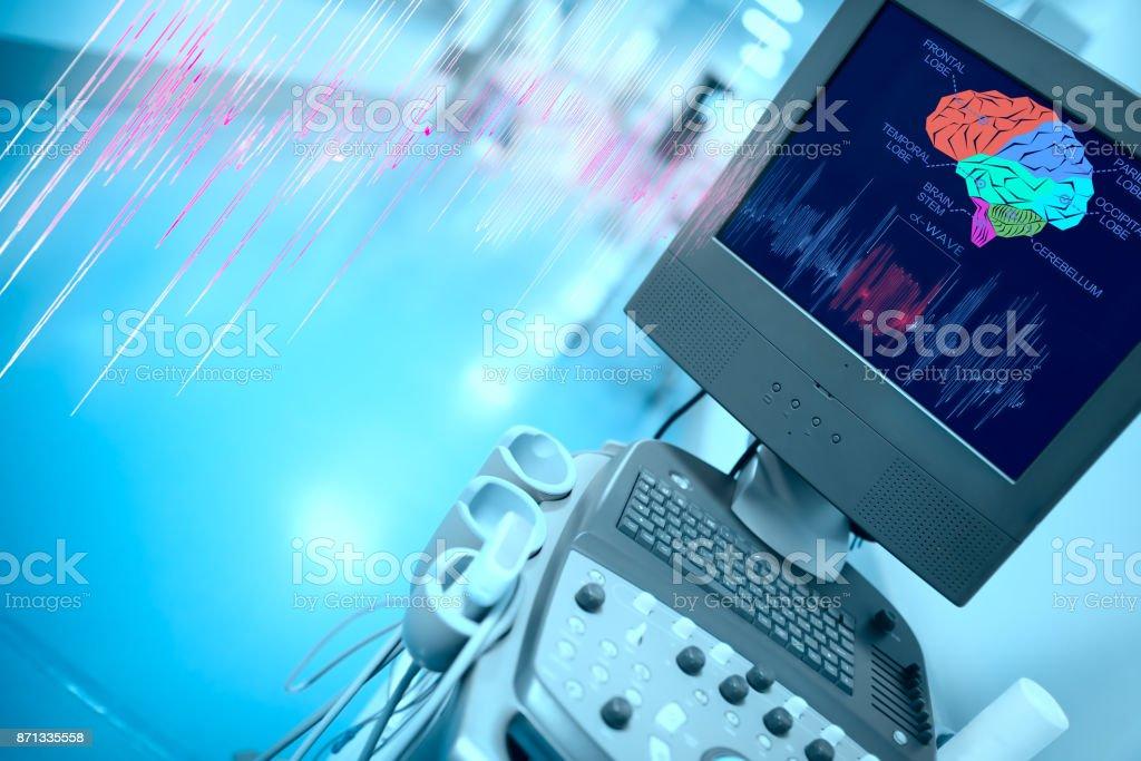 Brain examination with the modern equipment stock photo