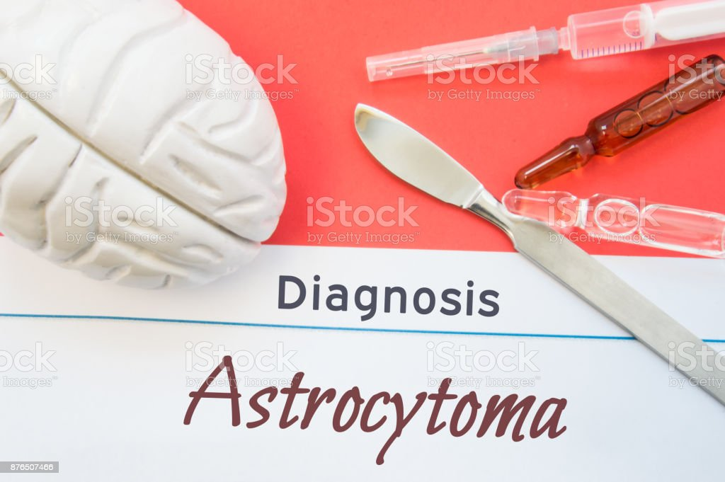 Brain figure, surgical scalpel, syringe and vials lying around title Diagnosis Astrocytoma. Concept photo for diagnosis, surgical and medicinal treatment of brain diseases astrocytoma stock photo