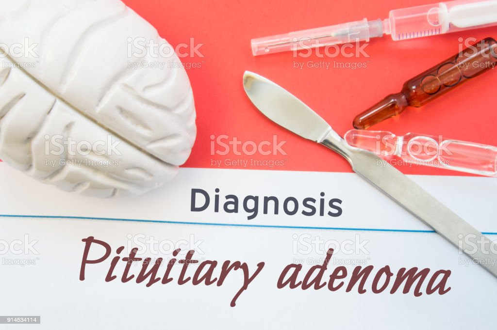 Brain figure, surgical scalpel, syringe and vials lying around title Diagnosis Pituitary adenoma. Concept photo for diagnosis, surgical and medicinal treatment of brain diseases Pituitary adenoma stock photo