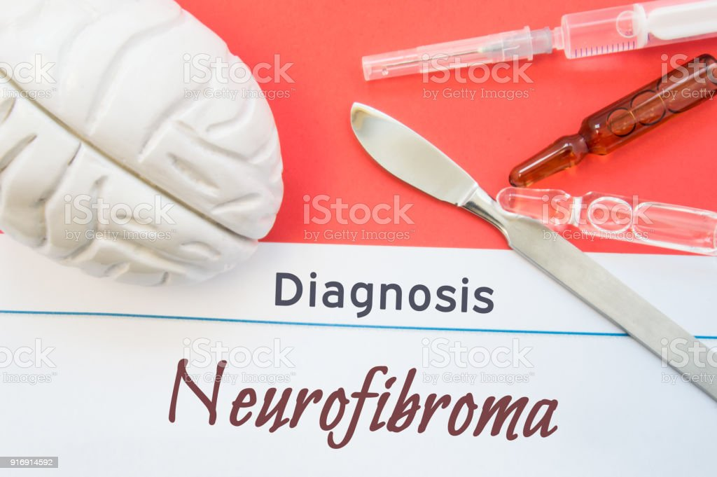 Brain figure, surgical scalpel, syringe and vials lying around title Diagnosis Neurofibroma. Concept photo for diagnosis, surgical and medicinal treatment of brain diseases Neurofibroma stock photo