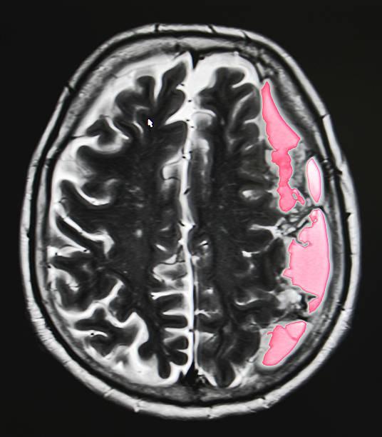 brain hemorrhage, MRI stock photo