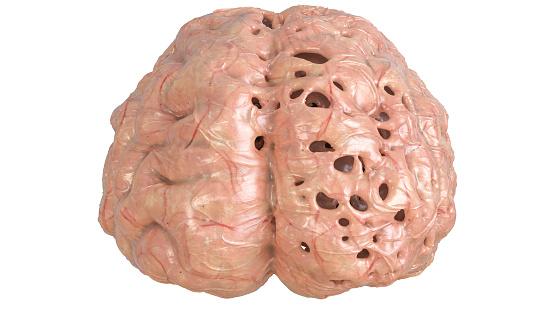 Brain In Severe Brain Disease Dementia Alzheimer Chorea ...