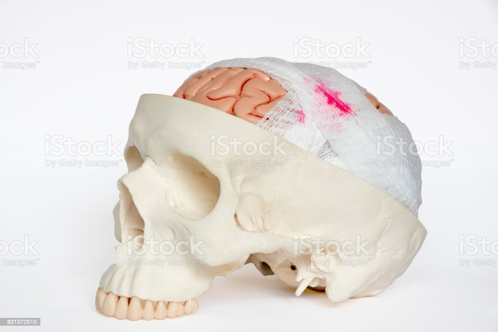 Brain injury model oblique view on the white background stock photo