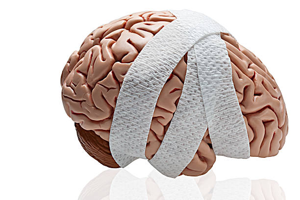 Brain Injury stock photo