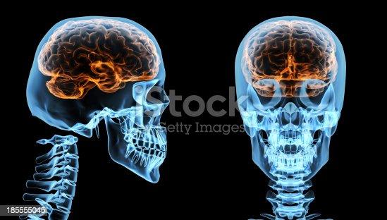 136191596istockphoto Brain inside skull 185555045