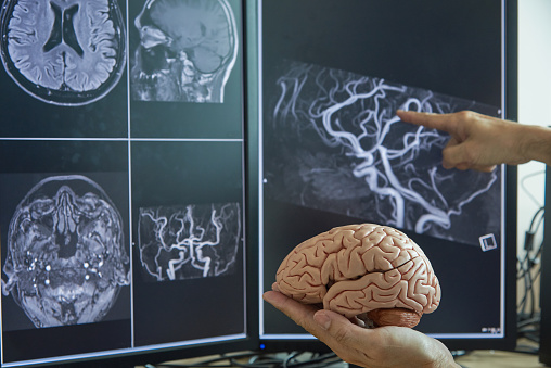Brain Model On Doctor Hand And Mri Image Stock Photo - Download Image Now