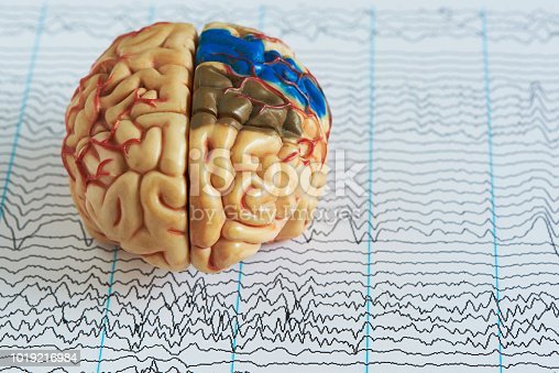 istock Brain model on human brain wave background 1019216984