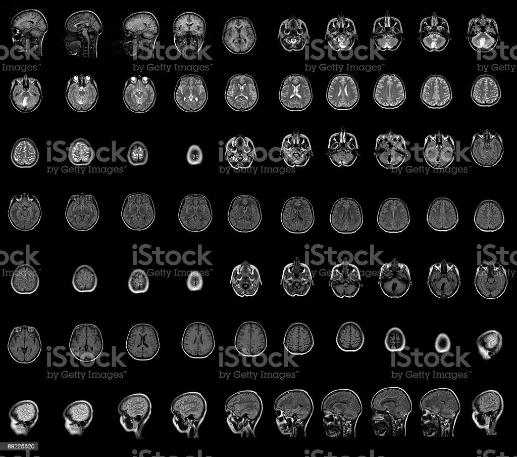 Brain Mri Stock Photo & More Pictures of Anatomy | iStock