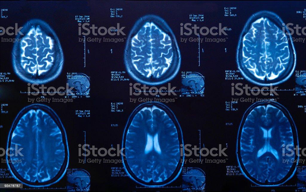 Brain MRI Scan for medical exam royalty-free stock photo