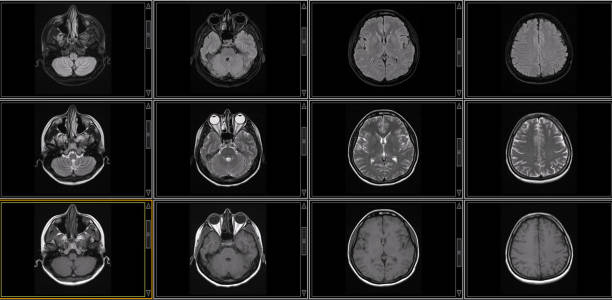 Brain MRI Scan of Healthy Male  ( Magnetic Resonance Imaging) High Resolution Medical Imaging cerebellum stock pictures, royalty-free photos & images
