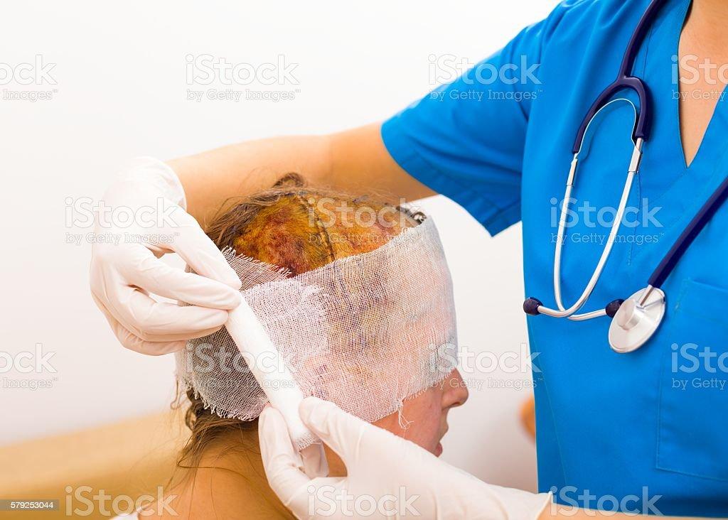 Brain oedema or tumour is hard stock photo