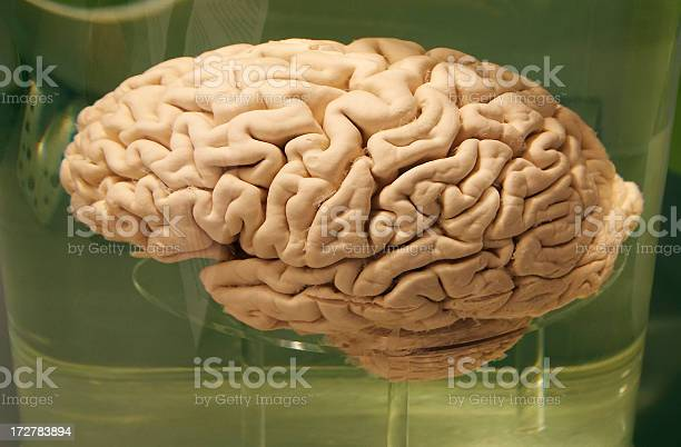 Brain Human brain conserved in formaldehyde Anatomy Stock Photo
