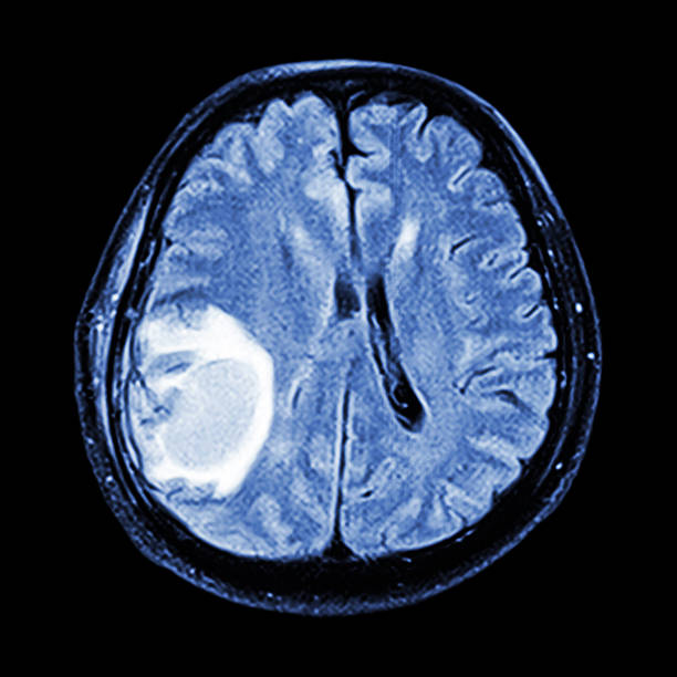 MRI brain stock photo