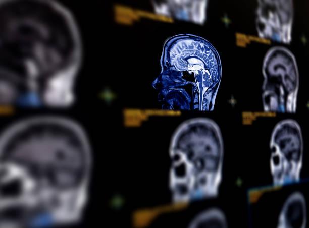MRT Gehirn sagittal Ebene für eine Vielzahl von Bedingungen des Gehirns wie Zysten zu erkennen, Tumore, Blutungen, Schwellungen, Entwicklungs- und Strukturelle Anomalien oder Infektionen . – Foto