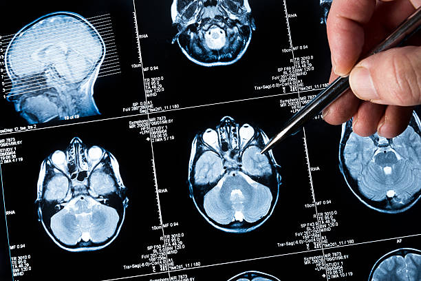 Brain scan being viewed by a doctor stock photo