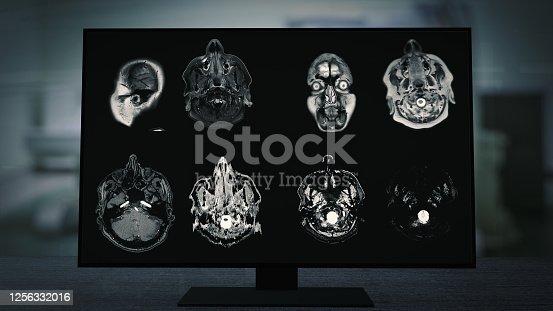 CT Brain scan image on Magnetic Resonance Imaging (MRI) monitor for neurological medical diagnosis on brain disease