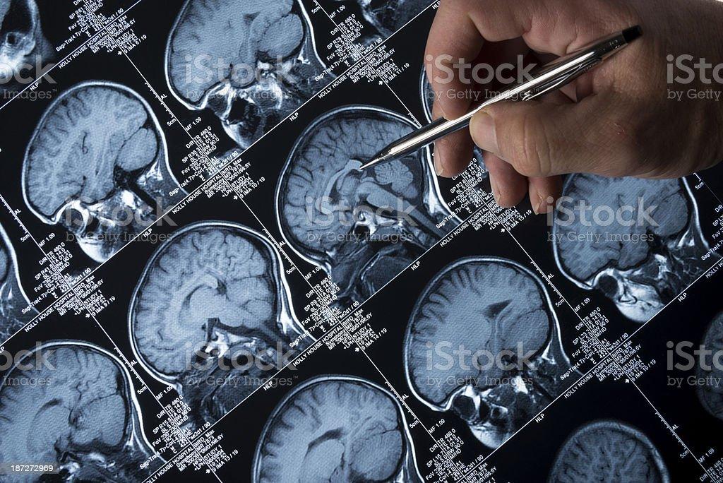Scanner à résonance magnétique de cerveau tête crâne et os avec Main pointant du doigt photo libre de droits