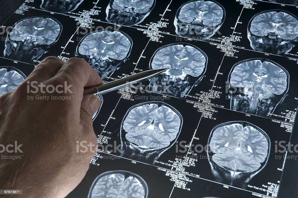 MRI Brain Scan of head and skull with hand pointing royalty-free stock photo