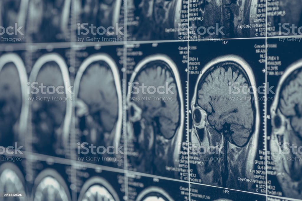 MRI brain scan or x-ray neurology human head skull tomography test stock photo