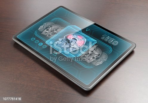 Tablet displaying brain activity scan on wooden table