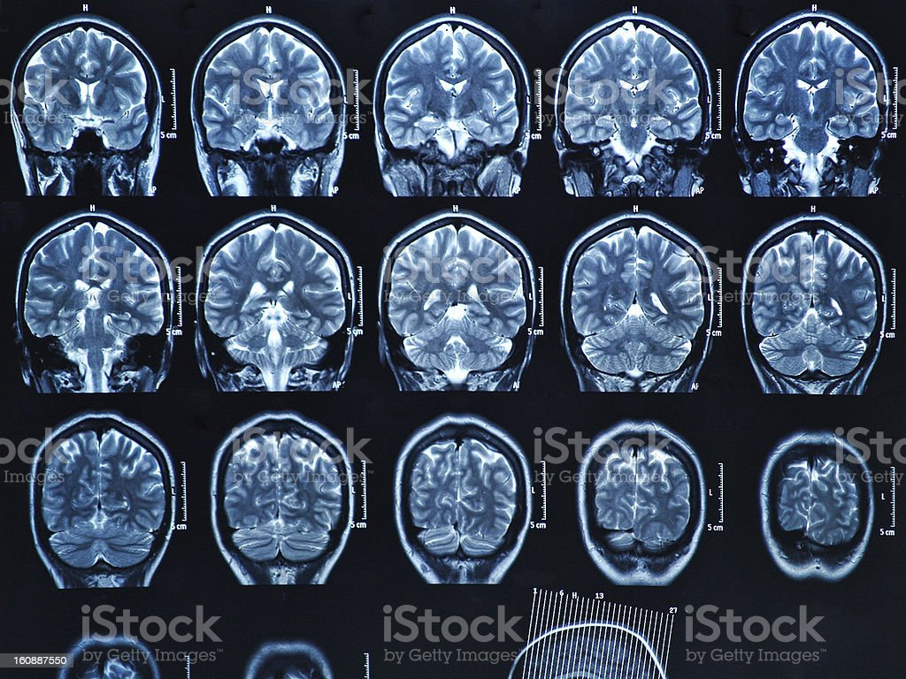 Mri Brain Scan Stock Photo More Pictures Of Anatomy Istock