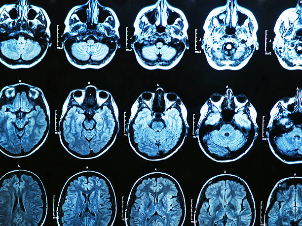 MRI Brain Scan MRI scan of the human brain lateral ventricle stock pictures, royalty-free photos & images