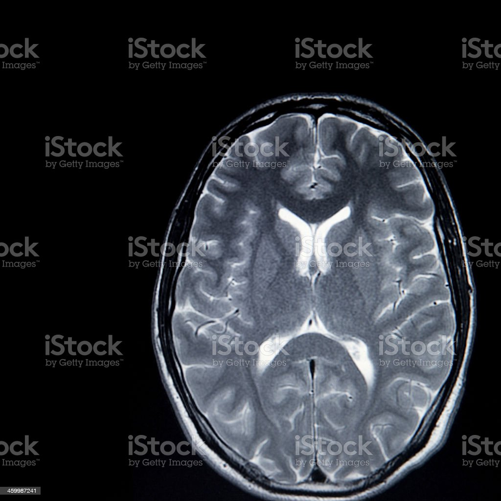 Mri Brain Scan Stock Photo & More Pictures of Anatomy | iStock