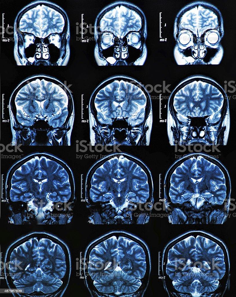 Mri Tomografía Cerebral - Fotografía de stock y más imágenes de ...