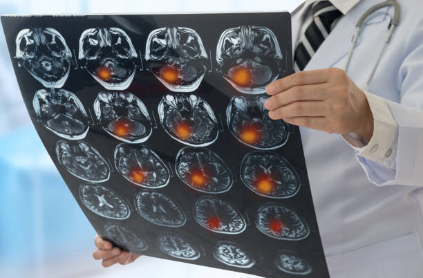 brain scan stock photo
