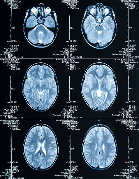 MRI Brain Scan showing multiple images of head and skull  cerebral aqueduct stock pictures, royalty-free photos & images