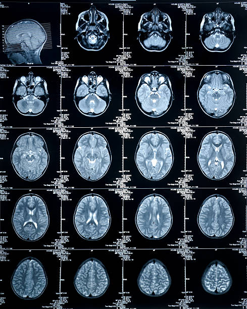 MRI Brain Scan showing multiple images of head and skull  auditory cortex stock pictures, royalty-free photos & images