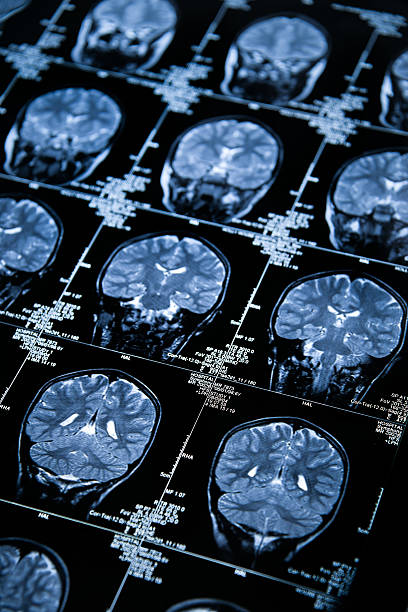 MRI Brain Scan showing multiple images of head and skull stock photo