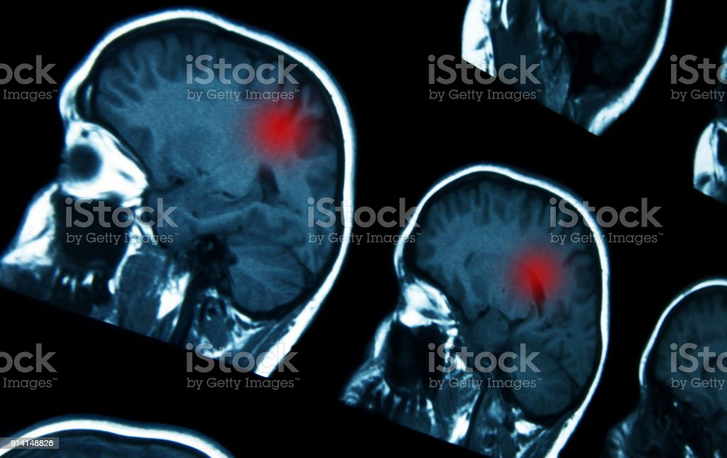 MRI brain scan with problems stock photo
