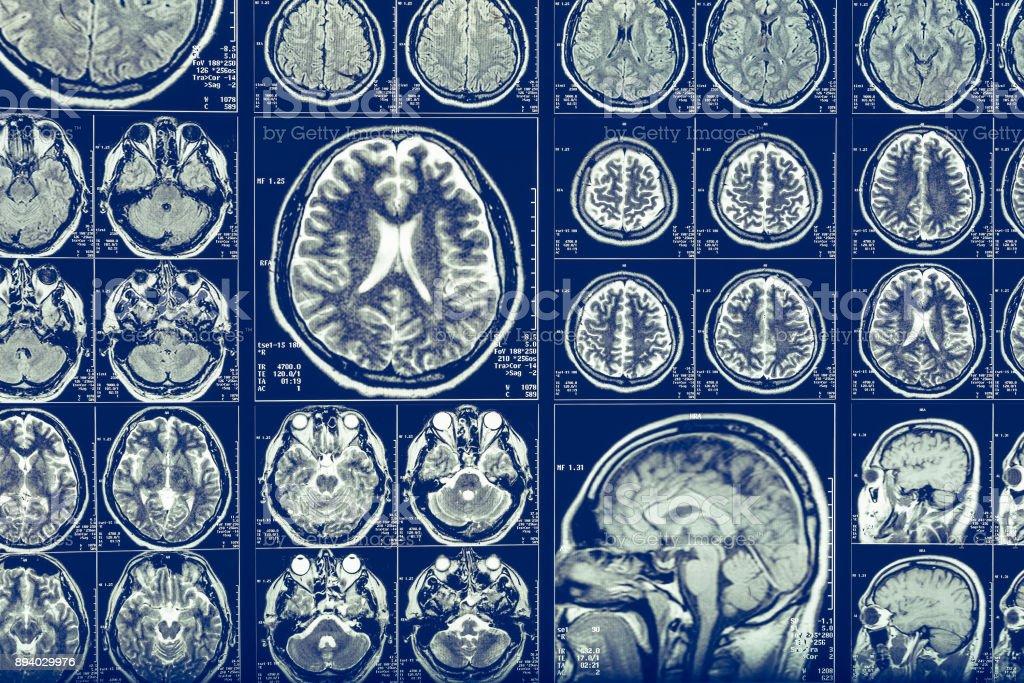 Brain scan X-ray Mri or Magnetic resonance imaging of human head,...