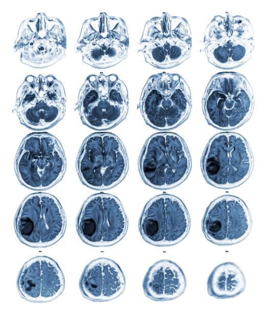 Brain show brain tumor at right parietal lobe picture id883922982?b=1&k=6&m=883922982&s=612x612&w=0&h= yzitwri4yar3uln7qvifhluusfmfl0rahxf8uyywko=