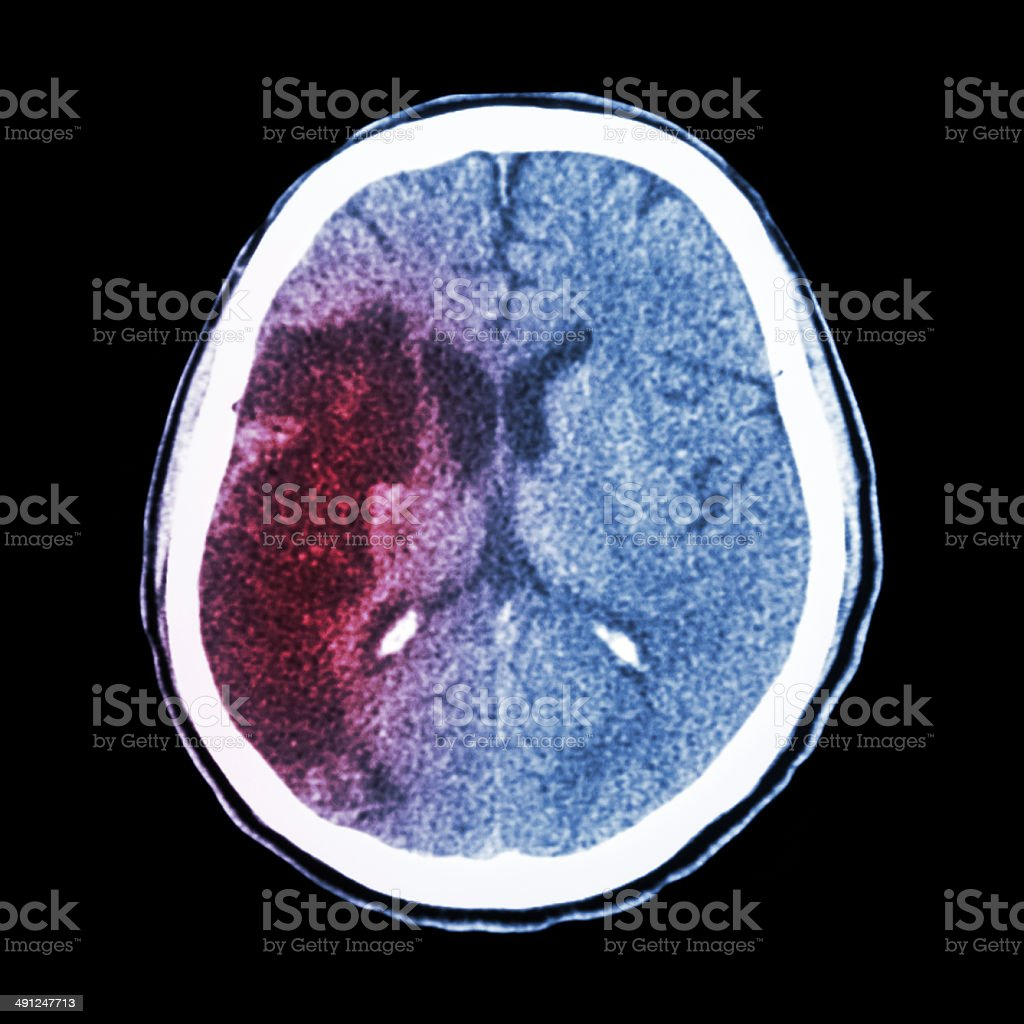 CT brain : show Ischemic stroke stock photo