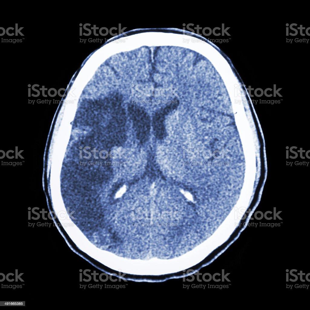 Ct Gehirn Show Ischemic Schlaganfall Stock-Fotografie und mehr ...