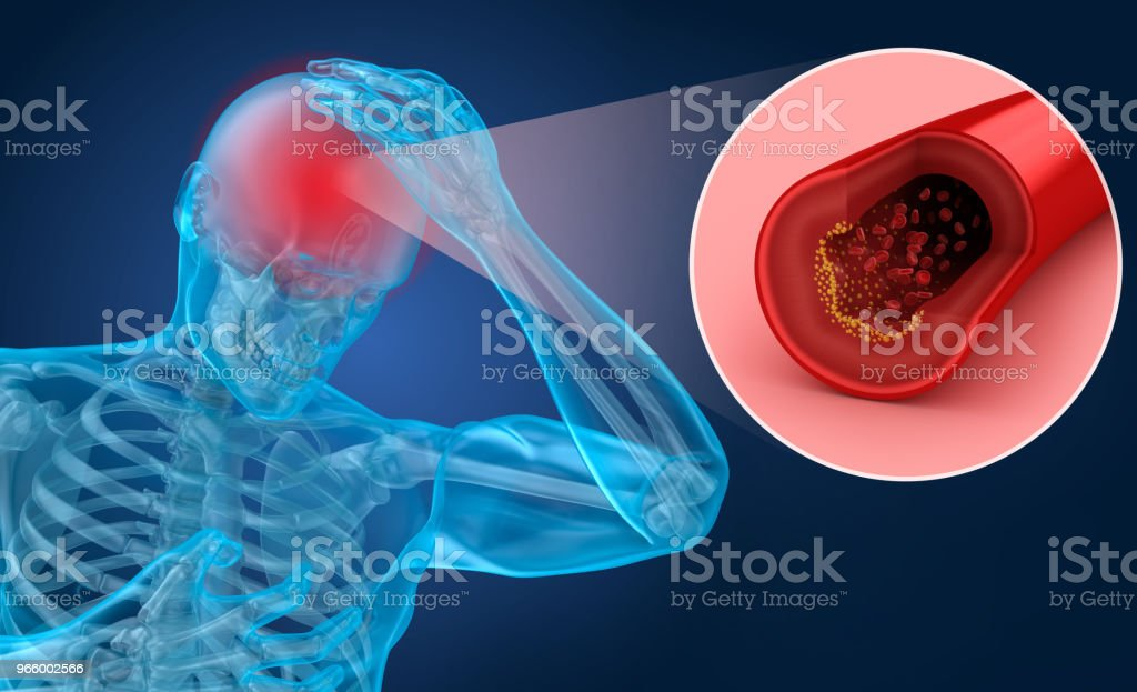 Brain stroke : 3d illustration of the vessels of the brain and causes of stroke stock photo