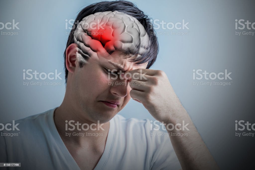 brain stroke concept, headache, cerebral hemorrhage, 3D rendering stock photo