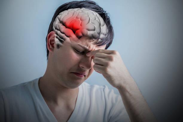 brain stroke concept, headache, cerebral hemorrhage, 3D rendering stock photo