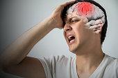 istock brain stroke concept, headache, cerebral hemorrhage, 3D rendering 815517798