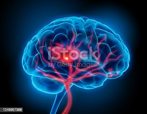 Illustration of human brain with stroke symptom