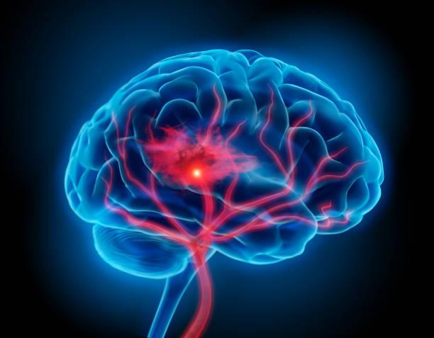 Brain Stroke stock photo