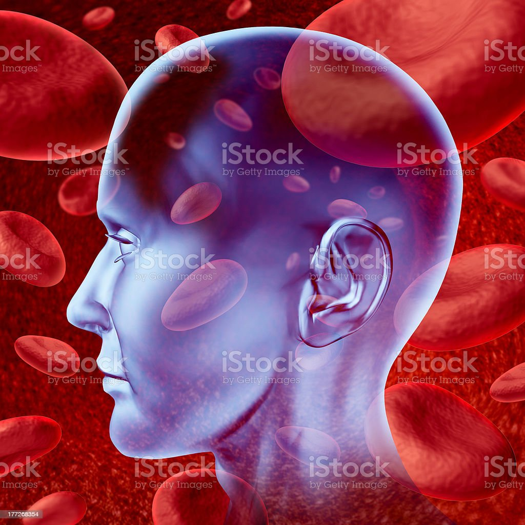 Brain stroke royalty-free stock photo
